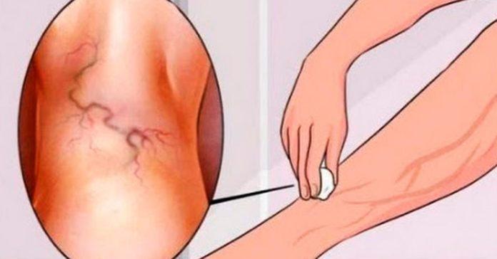 Методы избавления от варикоза
